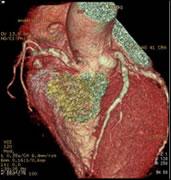 心臓CT画像(再構成画像)