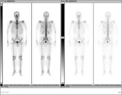 骨RI(全身)の画像