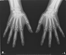 両手正面X線画像