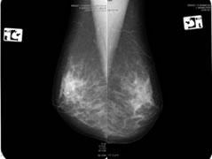 両乳房X線画像