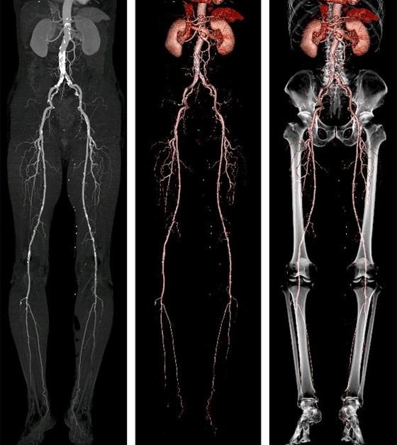下肢動脈CT