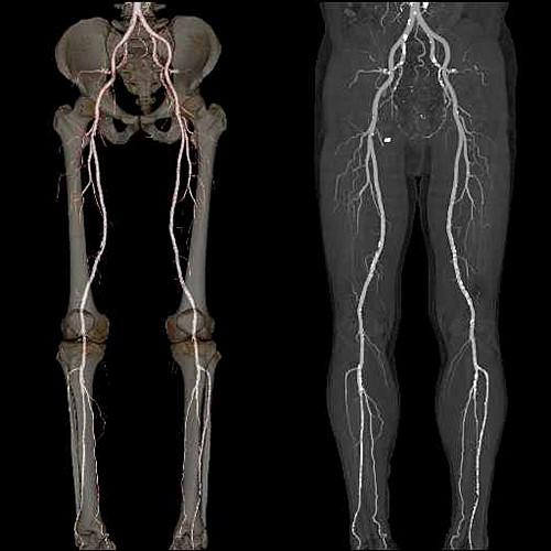 下肢動脈MRI