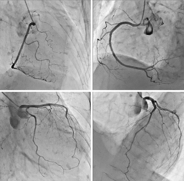 冠動脈造影検査